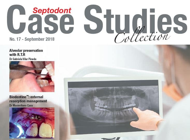 Case-Studies-17-picture-RTR-and-Biodentine